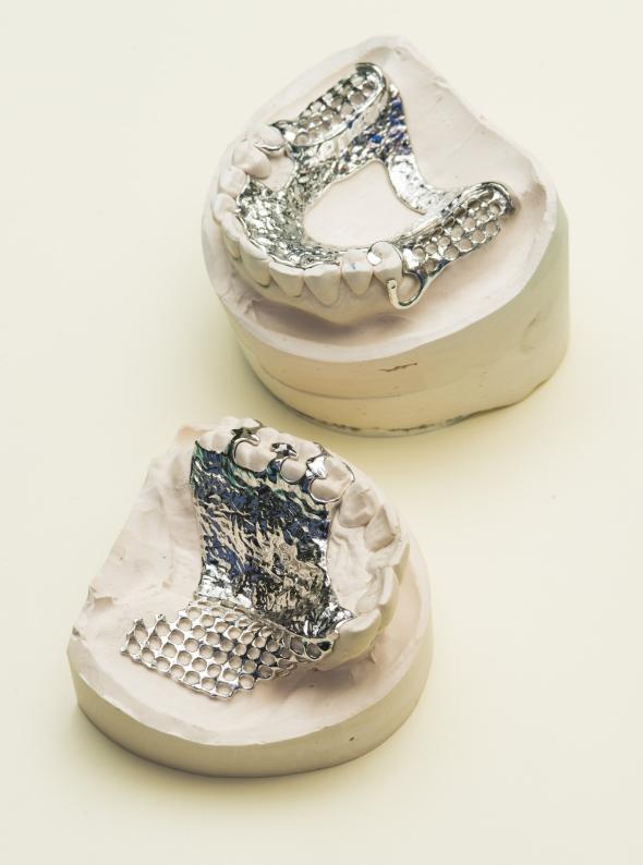 Výrobu zubních implantátů frézování nahradí 3D tisk. Foto: Renishaw